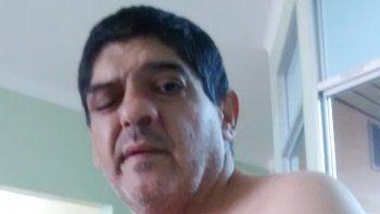 Héctor Montecino, en el hospital regional, muestra su rostro deformado.