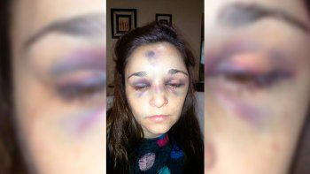San Luis: salvaje golpiza de un adolescente a su pareja de 31 años