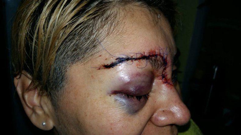 Atacó a golpes a su mamá y desfiguró a una sargento en Centenario