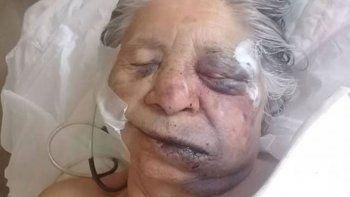Roban y golpean salvajemente a una anciana