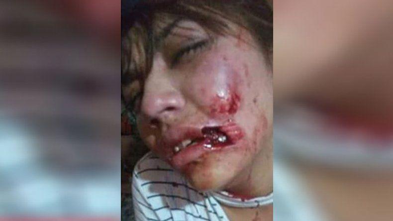 Brutal: atacó a mordidas a su novia y le arrancó parte del labio