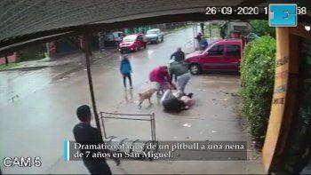 Video: terrible ataque de un pitbull a una nena de 7 años