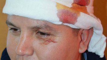 Aguiar es investigado por los ataques contra policías.