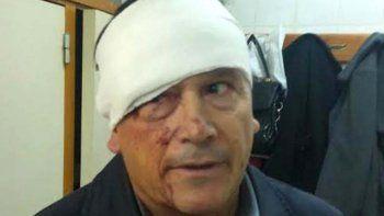 El comisario Antonio Mandagaray fue herido por dirigentes de ATE.