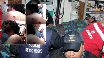 Denuncian brutalidad policial para detener a un hombre: recibió siete balazos de goma