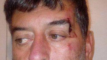 José Martínez sufrió un corte sobre un ojo tras forcejear con un ladrón.