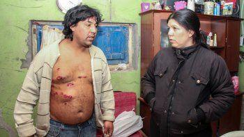Juan Retamal estuvo algunas horas detenido y luego recibió atención por las heridas en el hospital de Oro.