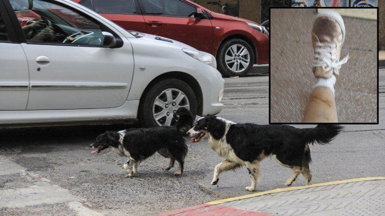 Una vecina denunció que dos perros la atacaron e hirieron en el Paseo de la Familia