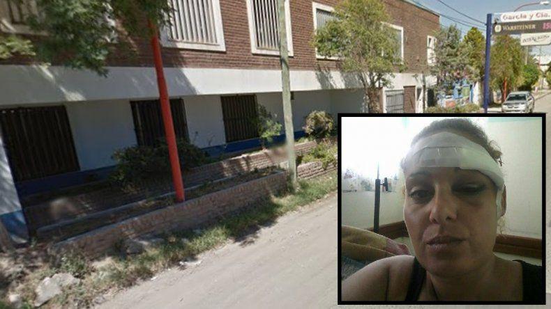 Su pareja le dio un palazo en la cabeza y la salvó su hija de 13 años