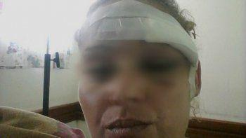 La mujer quedó con la cara desfigurada tras la brutal agresión de su pareja.