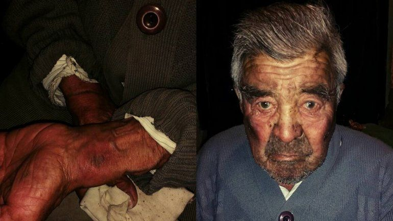 Golpearon a un abuelo y lo dejaron atado más de 12 horas para robarle
