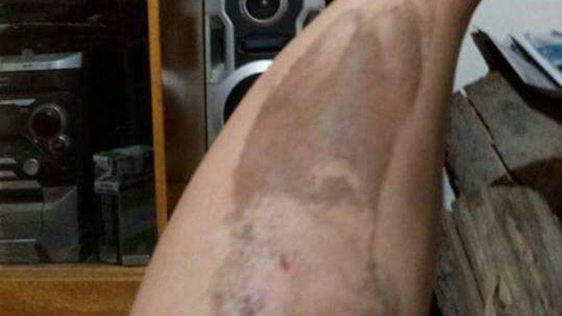 La mujer agredida por el chino sufrió lesiones en varias partes del cuerpo.