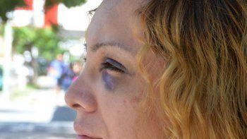 Alejandra Araya sufrió una brutal golpiza y acusó a Mamucha Ramírez como la instigadora, aunque una tal Antonella habría sido la autora material.