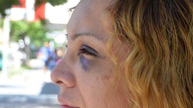 Alejandra Araya sufrió una brutal golpiza y acusó a Mamucha Ramírez como la instigadora