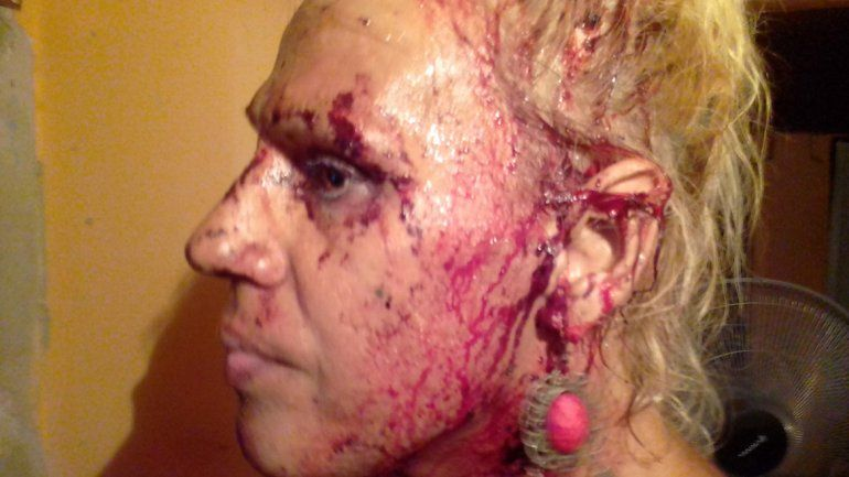 Mamucha Ramírez sufrió una brutal agresión el martes a la noche. Terminó con un corte en la cabeza, una costilla quebrada y varios dientes flojos.