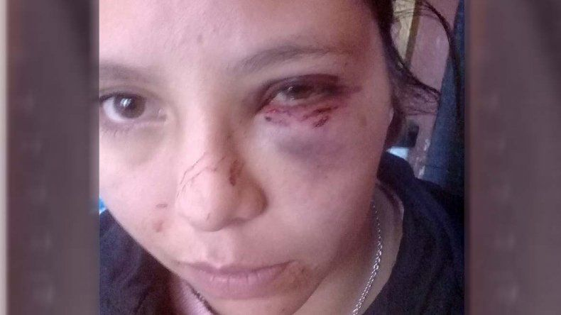 Brutal golpiza de un hombre a su pareja en el barrio Don Bosco: la pateó hasta dejarla inconsciente