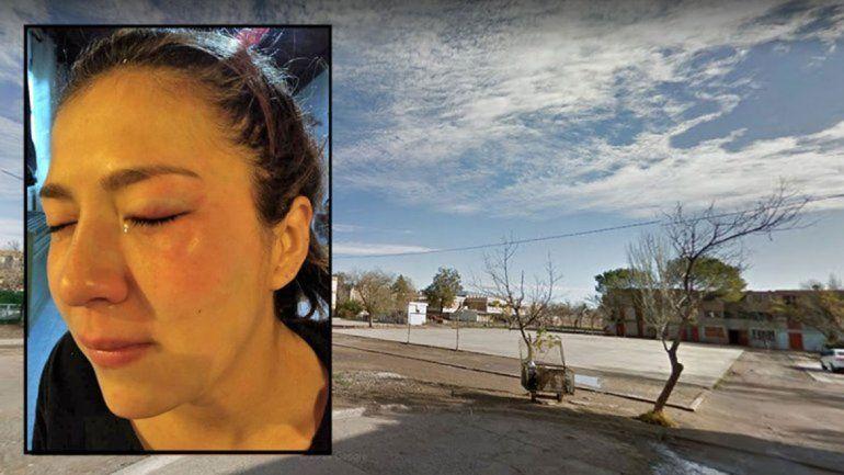 La adolescente de 17 años fue atacada en un playón de las 400 Viviendas.