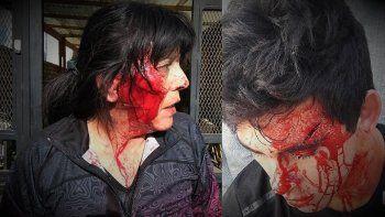 el video de la brutal agresion de una familia de boxeadores a una mujer del don bosco