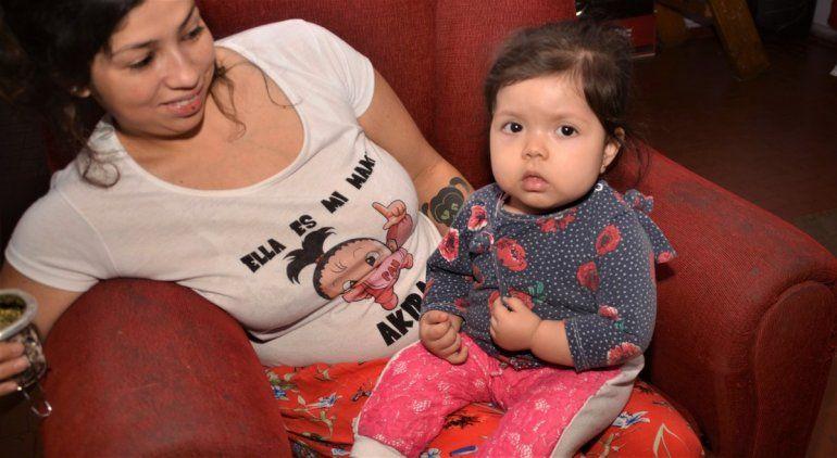 Nació con la cadera desplazada, la operaron tres veces y continúa igual