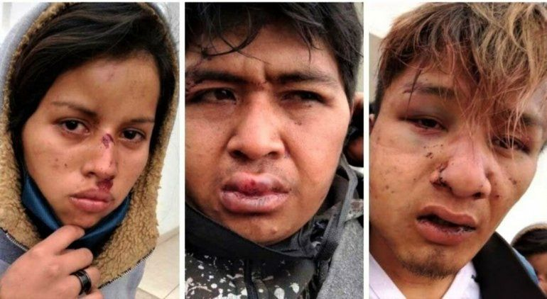 Odarda interviene tras los ataques a la comunidad Qom en Chaco