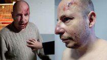 acusan a dos policias de un violento desalojo en el dvn