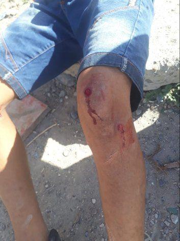 Las heridas fueron con postas de goma.