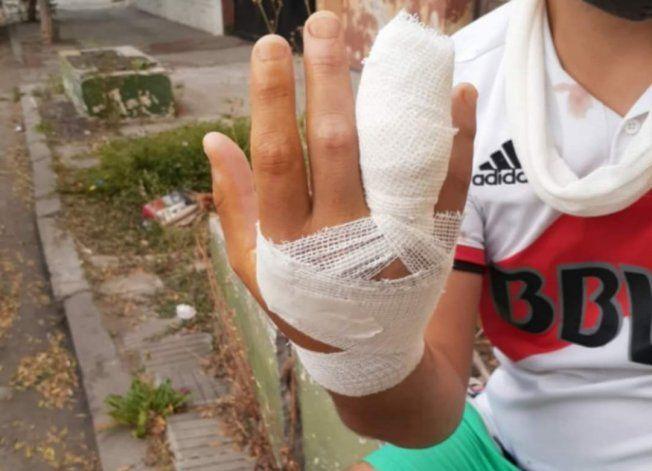 Fernando perdió parte de su dedo.