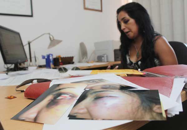 Mujer denunció una brutal golpiza por parte de un municipal de Fernández Oro