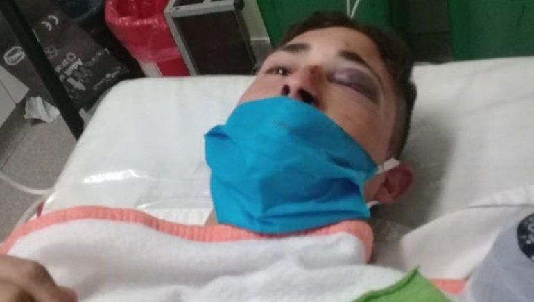 Se recupera el joven que se fracturó el cráneo tras tirarse al canal de El 30