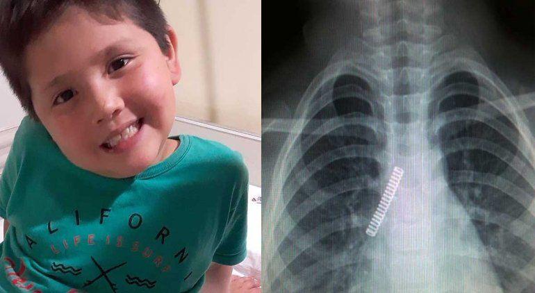 Nene se tragó un resorte y se le fue a los pulmones