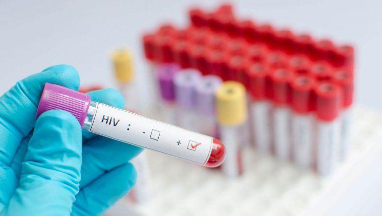 Por la pandemia caen a la mitad los testeos de VIH