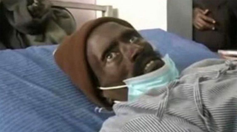 Lo declararon muerto y resucitó en la morgue cuando lo embalsamaban