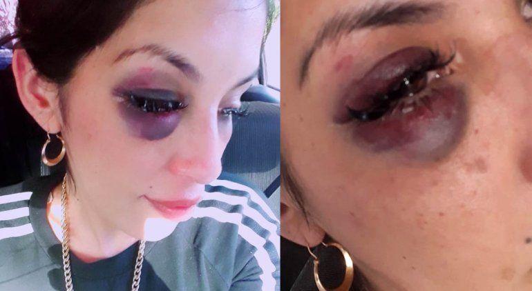 Cipoleña denunció que su ex pareja la desfiguró a golpes