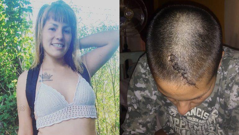 Le rompieron la cabeza de un piedrazo, estuvo en coma y vive para contarlo