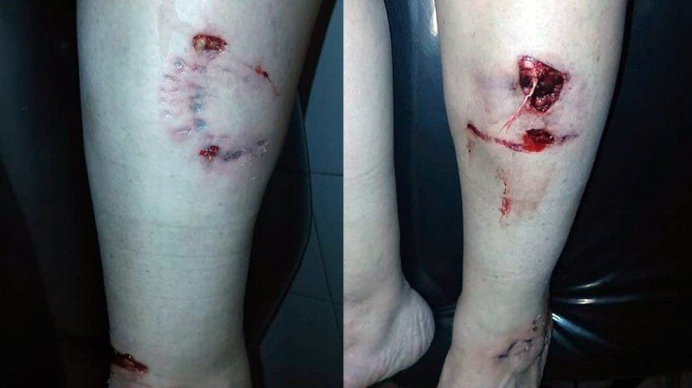 Salió de la casa de una amiga y un pitbull la atacó por atrás: sufrió heridas de gravedad