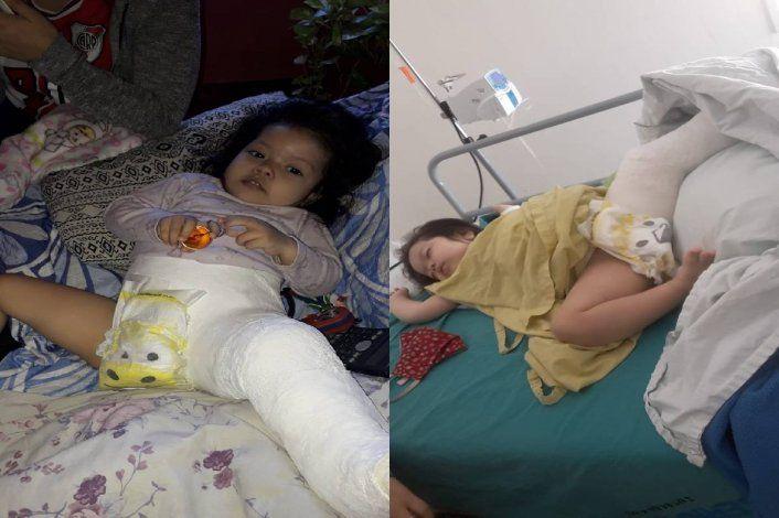 Un año de lucha para operar a Akira, la beba con la cadera desplazada