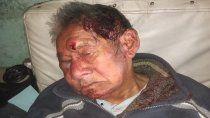 se agrava la salud del abuelo atacado por delincuentes