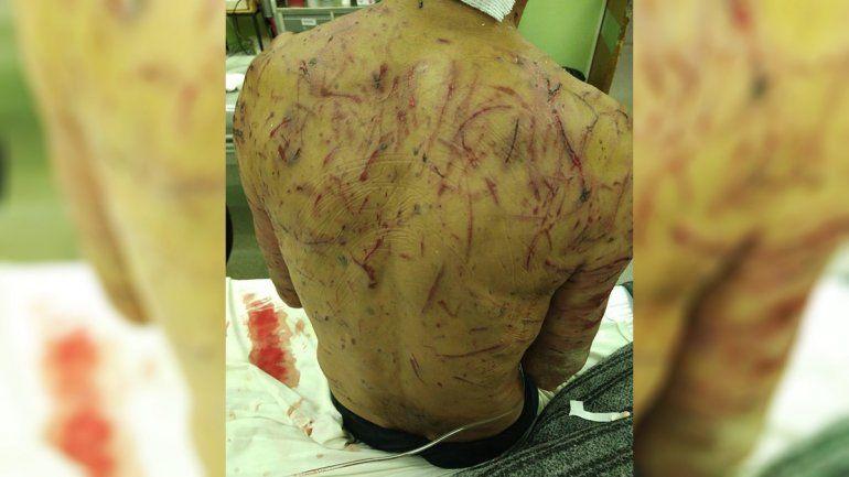 Una jauría atacó salvajemente a un hombre en la zona de El 30 y casi lo matan