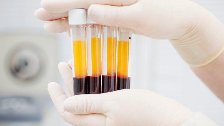 Covid-19: ¿El plasma es realmente efectivo para tratar la enfermedad?