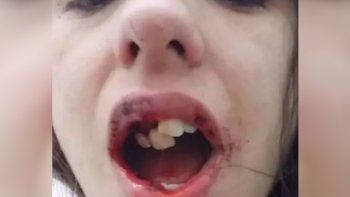 con la boca destrozada, corri a buscar a mi nena