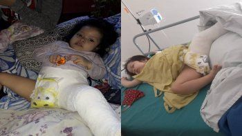 un ano de lucha para operar a akira, la beba con la cadera desplazada