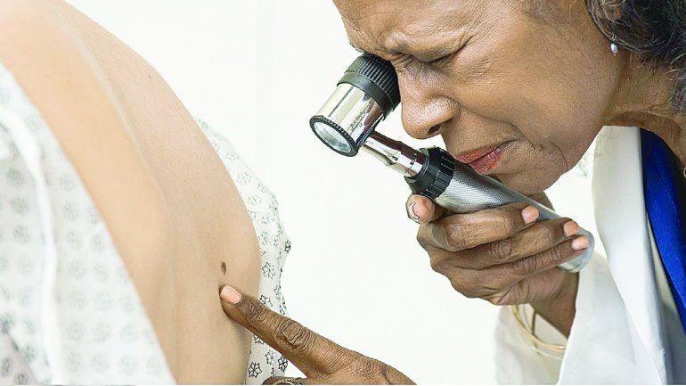 Melanoma: es el cáncer de piel menos frecuente y más preocupante.