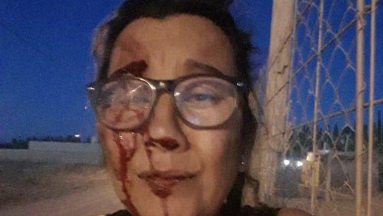 Huyó a Chaco para escapar del infierno: Creí que me mataba