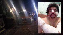 atacaron a punaladas a un taxista en balsa las perlas