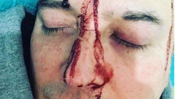 leo garcia sufrio un brutal ataque homofobico y lo denuncio en redes