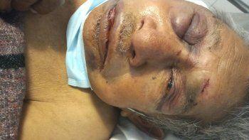 el abuelo golpeado por delincuentes ahora se contagio covid